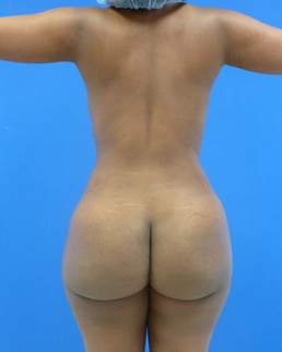 Brazilian Butt Lift - via fat transfer after 636804