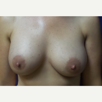 35-44 year old woman treated with Breast Augmentation after 3196100