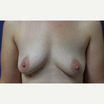 35-44 year old woman treated with Breast Augmentation before 3196100