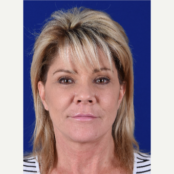 High SMAS Facelift, Lateral Temporal Brow Elevation, Lower Blepharoplasty, Fat Transfer, Lip Lift