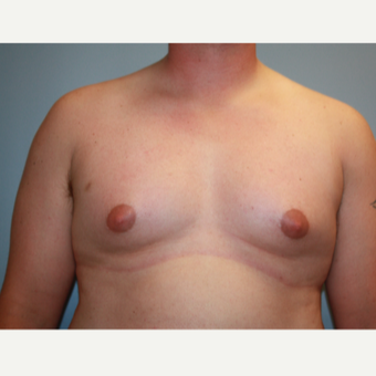 25-34 year old man treated with Male Breast Reduction before 3683182