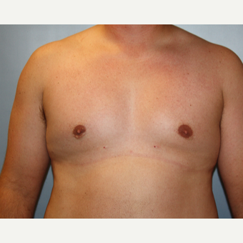 25-34 year old man treated with Male Breast Reduction after 3683182
