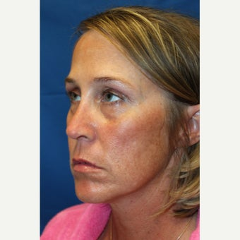 35-44 year old woman treated with Revision Rhinoplasty after 2677412