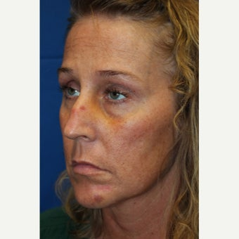 35-44 year old woman treated with Revision Rhinoplasty before 2677412