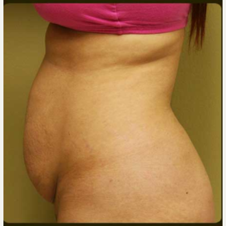 25-34 year old woman treated with Tummy Tuck before 3207510