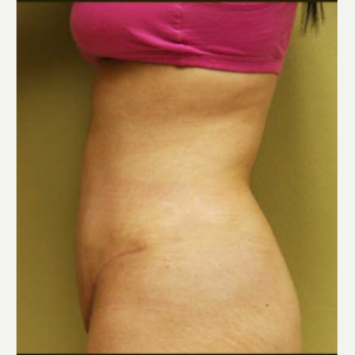 25-34 year old woman treated with Tummy Tuck after 3207510