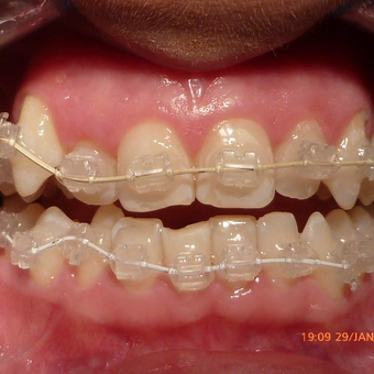 Smile Makeover Using Ceramic Braces after 3136513