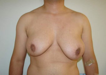 "FTM ""Top Surgery"" Chest Masculinization before 867207"