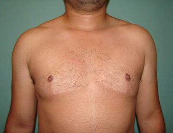 "FTM ""Top Surgery"" Chest Masculinization after 867207"