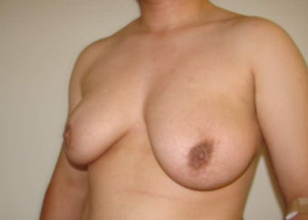"FTM ""Top Surgery"" Chest Masculinization 867207"
