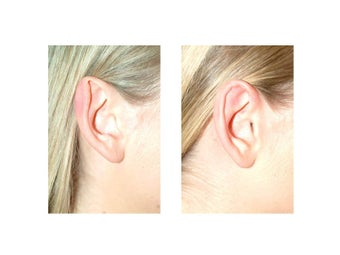 Otoplasty (Ear Surgery) before 1235687