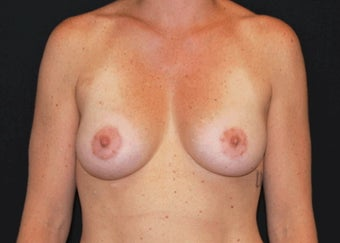 Breast Lift after 949222