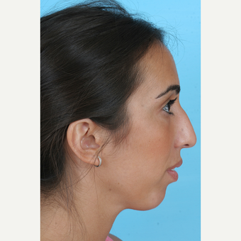 25-34 year old woman treated with Rhinoplasty before 3691151