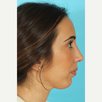 25-34 year old woman treated with Rhinoplasty after 3691151