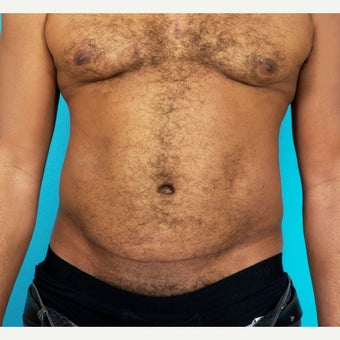 45-54 year old man treated with Painless/Drainless Tummy Tuck 8 Months Post-Op