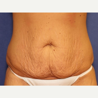 29 year old woman with a Panniculectomy before 3076279