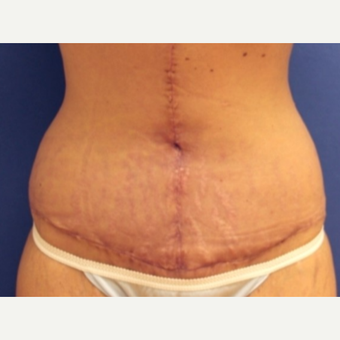 29 year old woman with a Panniculectomy after 3076279