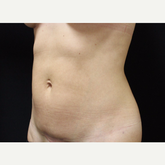 35-44 year old woman treated with Tummy Tuck before 3665283