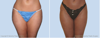 Liposuction  before 214355