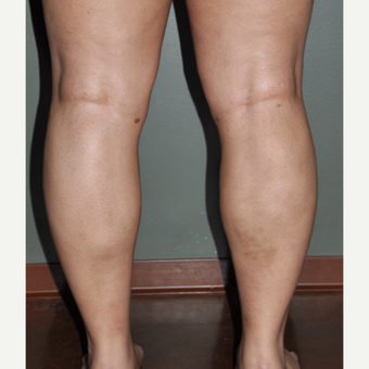 25-34 year old woman treated with Liposuction after 3234456