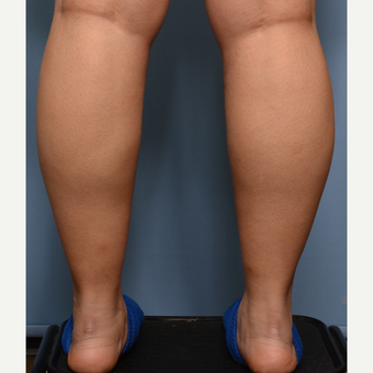 25-34 year old woman treated with Liposuction before 3234456