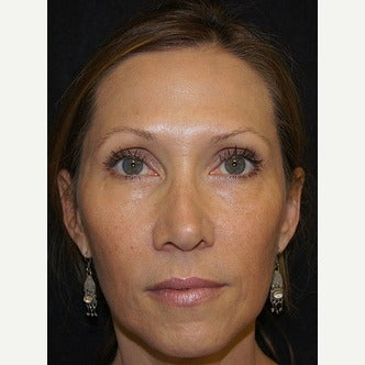 45-54 year old woman treated with Liquid Facelift after 1709617