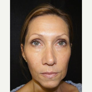 45-54 year old woman treated with Liquid Facelift before 1709617