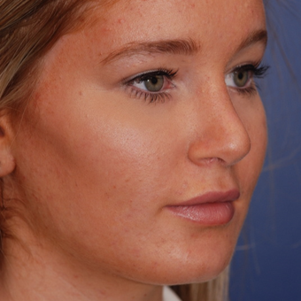 18-24 year old woman treated with Rhinoplasty after 3624363