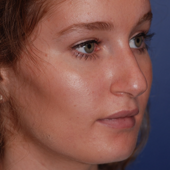 18-24 year old woman treated with Rhinoplasty before 3624363
