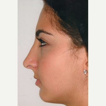 17 or under year old woman treated with Rhinoplasty after 3406276