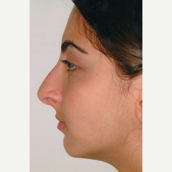 17 or under year old woman treated with Rhinoplasty before 3406276