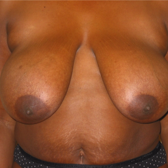 Breast Reduction on 40 year old Mommy Makeover Patient before 3092808