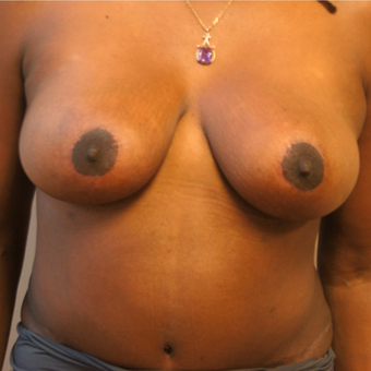 Breast Reduction on 40 year old Mommy Makeover Patient after 3092808