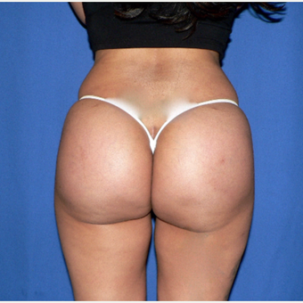 25-34 year old woman treated with Butt Implants after 3002373