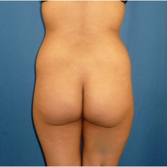 25-34 year old woman treated with Butt Implants before 3002373