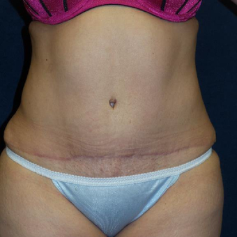 45-54 year old woman treated with Tummy Tuck after 3453620