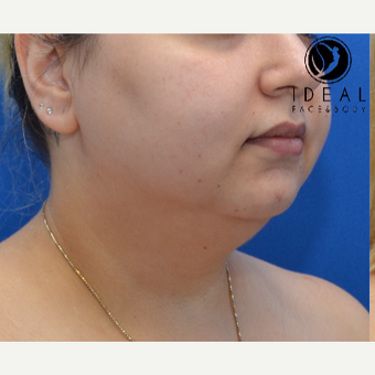 25-34 year old woman treated with Chin Surgery before 3579615