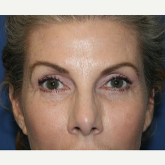 55-64 year old woman treated with Eyelid Surgery after 2994065