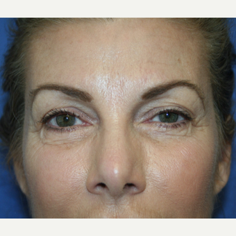 55-64 year old woman treated with Eyelid Surgery before 2994065