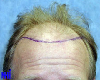 FUE Follicular Unit Transplant before 1970431