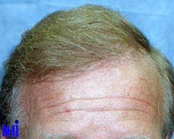 FUE Follicular Unit Transplant after 1970431