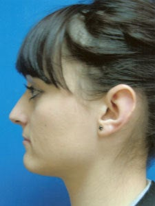 Otoplasty Ear Surgery - Female 818044