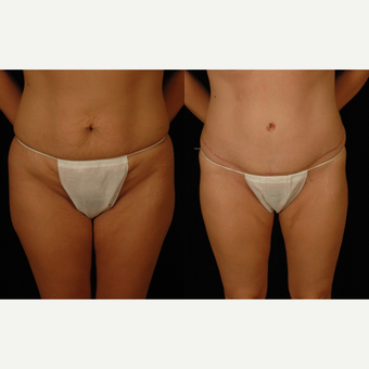 35-44 year old woman treated with Tummy Tuck before 3659591