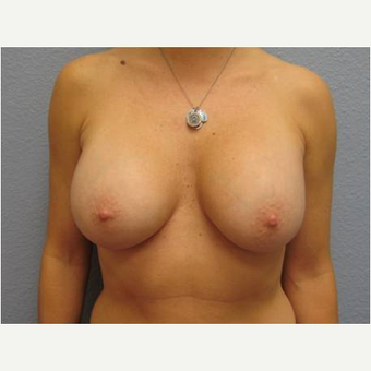 35-44 year old woman treated with Breast Implant Removal before 3736990
