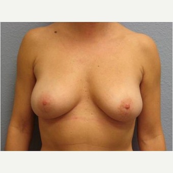 35-44 year old woman treated with Breast Implant Removal after 3736990