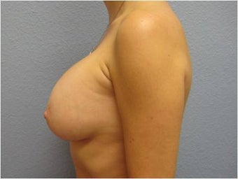 35-44 year old woman treated with Breast Implant Removal 3736990
