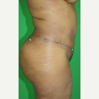 45-54 year old man treated with Tummy Tuck after 2977742