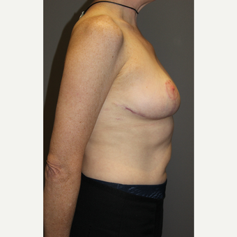 45-54 year old woman treated with Breast Lift after 3129311