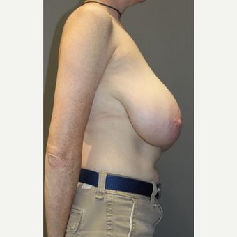 45-54 year old woman treated with Breast Lift before 3129311