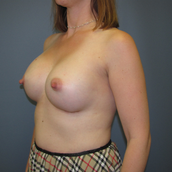 Breast Augmentation performed using Ideal Implants after 3408146